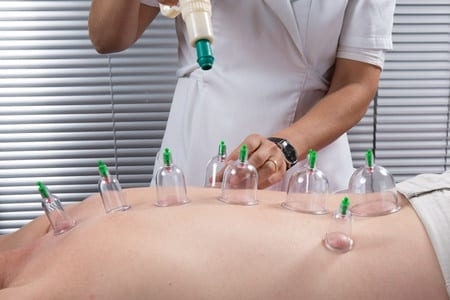 What is Chinese Cupping?